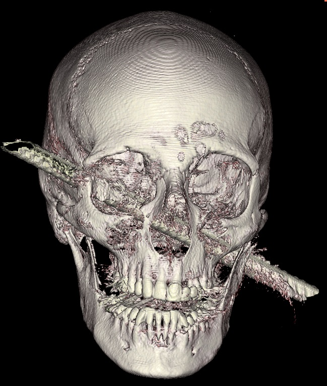 Name:  skull_9282f3374cc7c1f9eb338ed4266f75c0.jpg Views: 672 Size:  170.5 KB