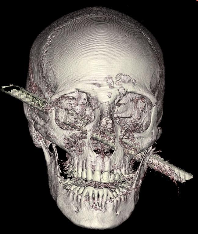Name:  skull_9282f3374cc7c1f9eb338ed4266f75c0.jpg Views: 669 Size:  170.5 KB
